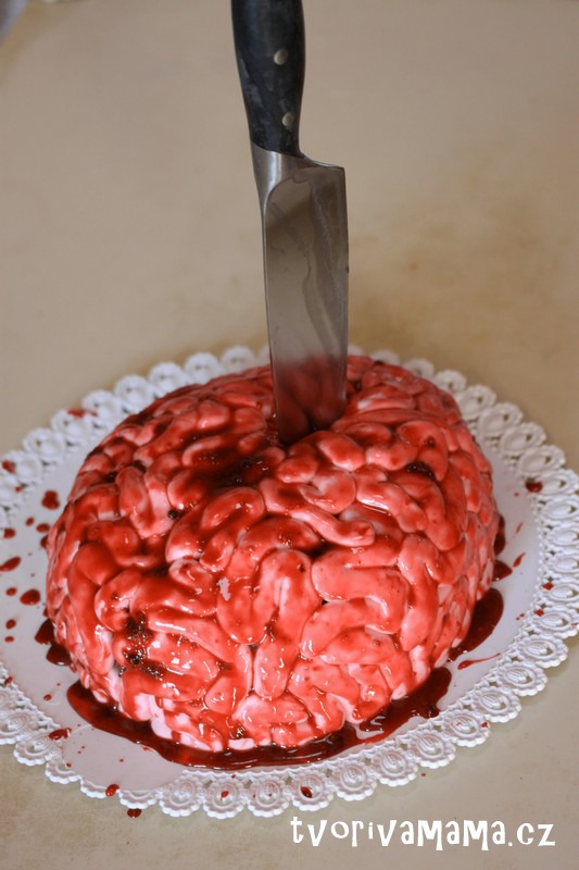 dort mozek