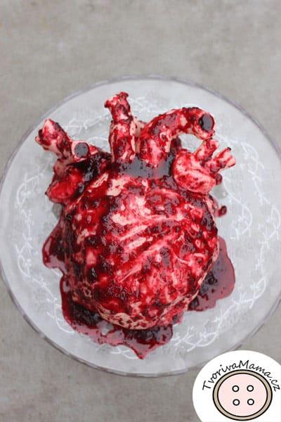 dort srdce